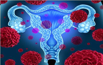Tumore della cervice uterina